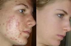 peeling anti acn images avant apr s centre de soins esth tiques akhena. Black Bedroom Furniture Sets. Home Design Ideas
